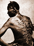 picture_of_scarred_runaway_slave